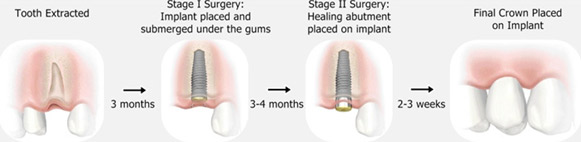 Dental Implants Treatment In India
